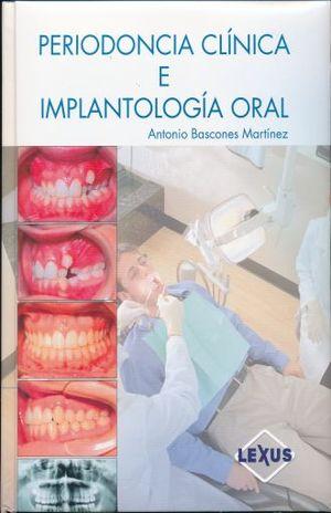PERIODONCIA CLINICA E IMPLANTOLOGIA / PD.