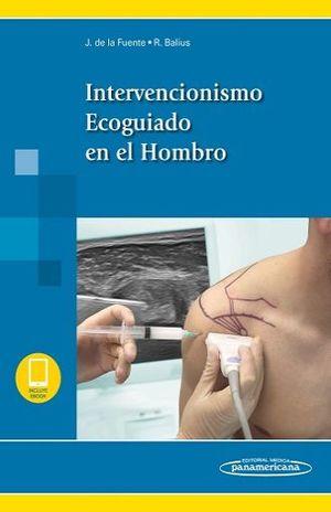INTERVENCIONISMO ECOGUIADO EN EL HOMBRO (NCLUYE EBOOK)