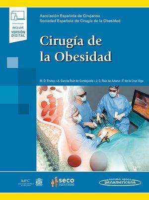 Cirugía de la obesidad / pd. (Incluye versión digital)