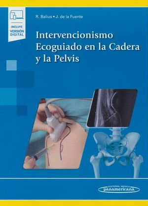 Intervencionismo Ecoguiado en la cadera y la pelvis (Incluye versión digital)