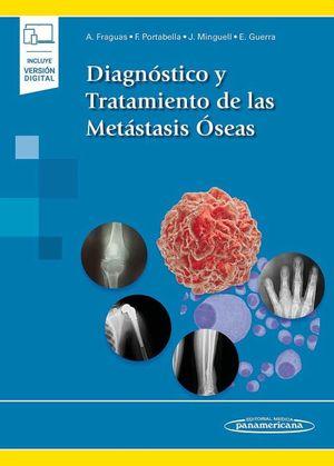 Diagnóstico y tratamiento de las metástasis óseas / pd. (Incluye versión digital)
