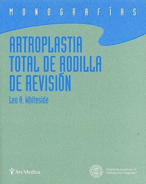 ARTROPLASTIA TOTAL DE RODILLA DE REVISION