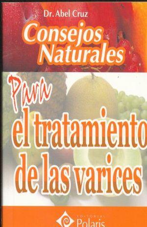 CONSEJOS NATURALES PARA EL TRATAMIENTO DE LAS VARICES